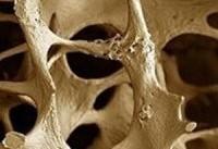 پوکی استخوانتان را با تراشه&#۸۲۰۴;های ناخن تشخیص دهید
