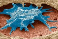 ساخت زیستحسگر تشخیص زودهنگام سرطان تخمدان