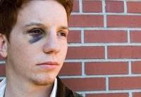 نکته بهداشتی: درمان کبودی زیر چشم