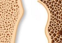 برای پیشگیری از پوکی استخوان چه کنیم؟