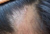 آیا روشهای درمان ریزش مو مؤثرند؟