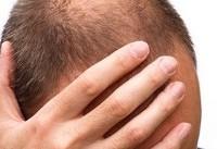 راهکارهای سازمان غذا و داروی آمریکا برای مقابله با ریزش مو