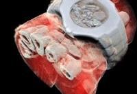 اولین تصاویر رنگی سه بعدی از بدن انسان