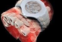 تهیه اولین عکس سه بعدی رنگی اشعه ایکس از بدن انسان