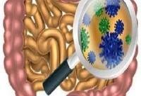 نقش میکروبیوم های روده مادر در ابتلا کودک به اوتیسم