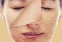 توصیه های طلایی برای درمان خشکی پوست