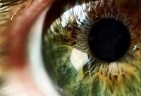 میزان ضرر نور تلفن همراه روی چشم چقدر است؟