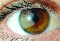 تشخیص دیابت از روی تصویر شبکیه چشم | پیشبینی بیماری در ۳۰ثانیه