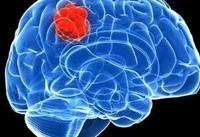 تومور مغزی سیستم ایمنی را تغییر میدهد