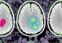 نانو ذرات؛ راهکار جدید درمان سرطان