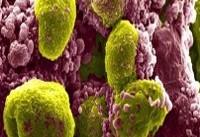 شناسایی فاکتورهای پرخطر ابتلا به سرطان پروستات