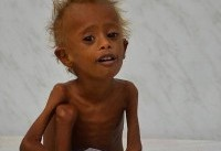 بیش از ۵ میلیون کودک یمنی در خطر گرسنگی