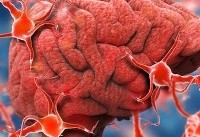 چرا اغلب داروهای آلزایمر با شکست مواجه میشوند؟