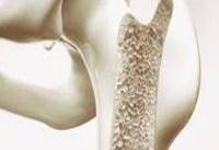کاهش تراکم استخوانها در مردان، ۶ نشانه مشخص دارد!