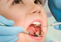 مواد خوراکی مضر برای دندان ها را بشناسید