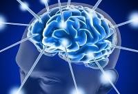 دستگاههای نوری تصویربرداری مغز بومی شد