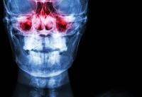 برای درمان سینوزیت چه کنیم؟