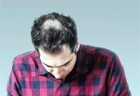 علت تضعیف ریشه مو | راهکار تعویق طاسی آقایان