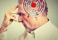 درمان آسانتر با تشخیص علائم اولیه بیماری آلزایمر
