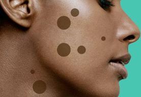 ۹ روش برای از بین بردن لکه های قهوه ای پوست و بررسی علت بروز آنها
