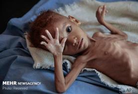 یک سوم کودکان زیر ۵ سال جهان دچار سوءتغذیه هستند