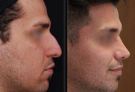 حداقل و حداکثر سن برای انجام جراحی زیبایی بینی