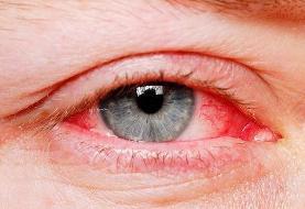 بیماریهای التهابی چشم جدی گرفته شود