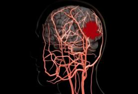 روز جهانی سکته مغزی؛ وقتی که خون به مغز نمیرسد