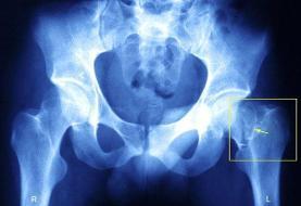 فعالیت فیزیکی ریسک شکستگی لگن را در زنان مسن کاهش می دهد