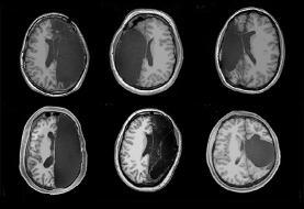 پس از برداشتن نیمی از مغز چه اتفاقی میافتد| شش نفری که با نیمی از مغزشان زندگی میکنند