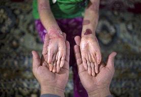 بیماری پروانهای؛ ناهنجاری حاصل از ازدواجهای فامیلی