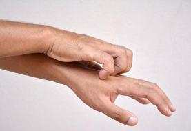 ۱۰ دلیل خارش شدید پوست