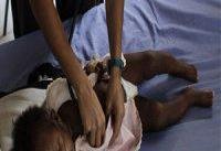 خطر مرگ پس از جراحی در کودکان کشورهای فقیر بیشتر است