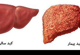 بررسی علل و علائم کبد یا جگر چرب
