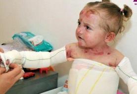 ۱۰ درصد عوارض واردات لوازم آرایش برای بیماران پروانهای و اوتیسم