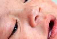 هشدار WHO نسبت به افزایش ۵۰ درصدی مبتلایان به سرخک