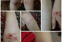 حمله سگ ولگرد به یک کودک ۷ ساله در یک روستا+ عکس