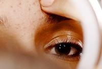 درمان جوش صورت با گلاب؛ ۱۱ روش فوقالعاده برای درمان جوش