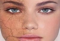 افراد دارای پوست خشک از مصرف ادویه های تند بپرهیزند