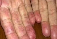 بیماری لوپوس موجب عدم توازن در باکتری های روده می شود