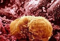 ۳۰ تا ۵۰ درصد سرطانها عامل توارثی دارند