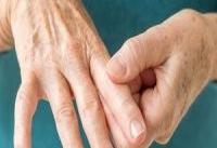 داروی درمان آرتریت روماتوئید در ایران تولید شد