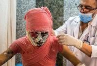 دست، صورت و چشم بیشترین آسیب را در چهارشنبه سوری میبینند
