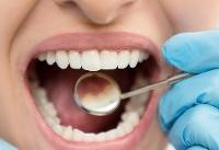 بایدها و نبایدهای محافظت از دندان در ایام نوروز
