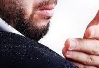 ۵ دلیل بروز شوره که ارتباطی با خشکی سر ندارند