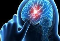 نجات بیماران سکته مغزی به کمک درمان مداخله&#۸۲۰۴;ای/ حفظ سلامت بیمار تا ۲۴ ساعت