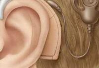 تولد سالانه ۴۰۰۰ کودک ناشنوا در کشور / هزینه ۵۰ میلیونی کاشت حلزون شنوایی