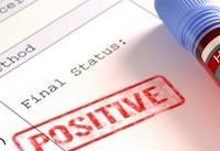 پیوند عضو در بیماران مبتلا به ایدز امکان پذیر شد