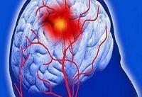 راه های پیشگیری از سکته مغزی را بدانیم