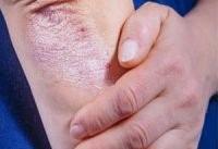 ارتباط بیماری پوستی پسوریازیس و بیماری های روانی